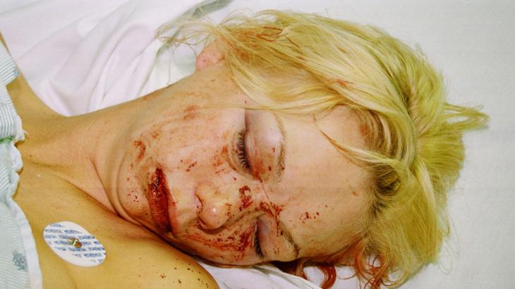 ◆殴られた娼婦の痛々しい写真。事件にならない夜の暴力