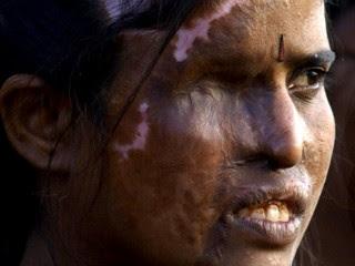 女性に酸を浴びせて顔を損壊させる事件の裏に何があるのか