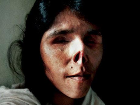 ◆浮気を疑われ、鼻と耳と舌を削がれ、眼球を潰された女性
