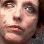 ◆片目の白人セックスワーカーがアメリカで逮捕されていた