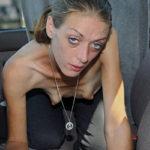 ◆最底辺の世界に棲む女たちの凄まじく荒廃した身体が訴えるもの