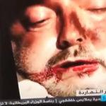 ◆ジャマル・カショギの殺害とバラバラの画像が少しずつリークされている