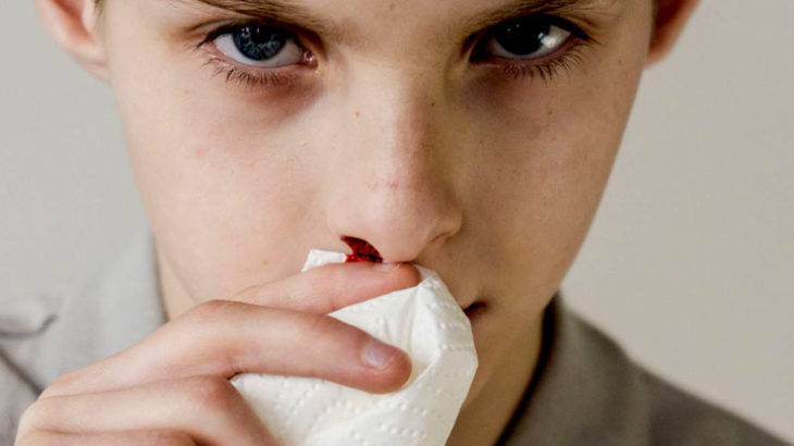 ◆鼻の手術。経過報告。鼻から食塩水を入れて口から血の塊を出すのが快適に