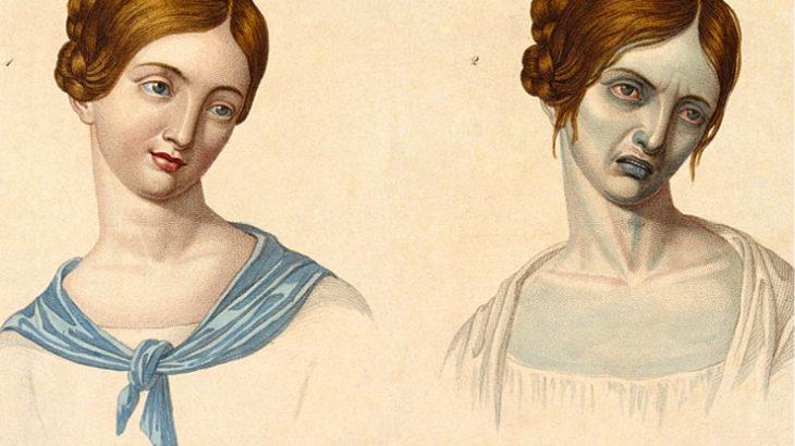 ◆ポックス。乱交と不道徳の結果、人間を生きたまま腐らせた中世の「不治の病」