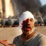 ◆ベイルート大爆発。死者135人どころではない壮絶なスケールの破壊の光景